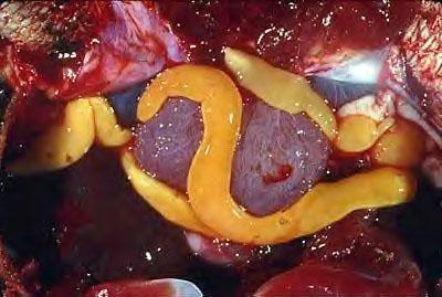 mit inni a parazitáktol egy felnottnek férgek a terhes nők tabletta kezelés