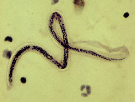 giardia infection natural treatment