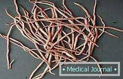 szoptatás a helminthiasis kezelésére