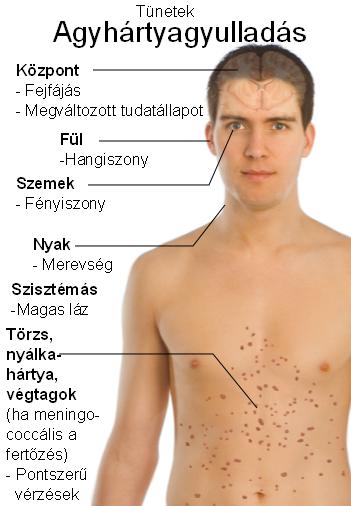 vírusok és paraziták kezelése